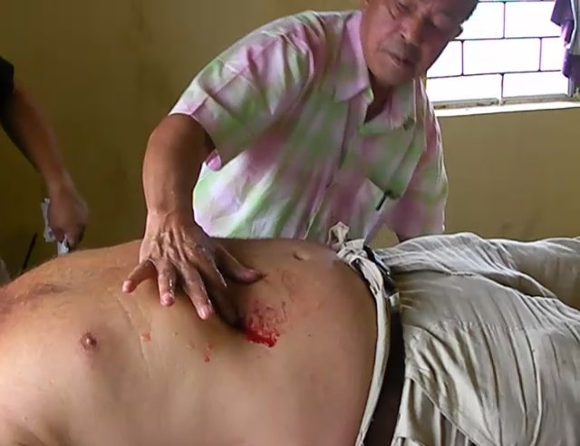 The Enigma of Psychic Surgery in the Philippines Part 1